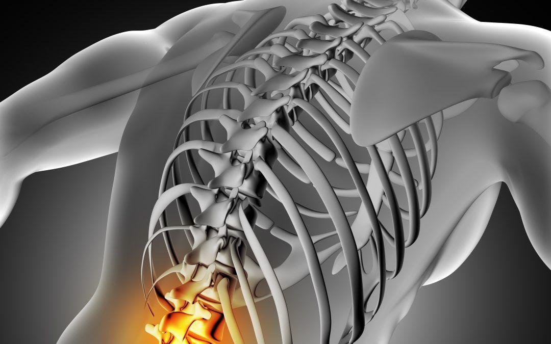 Síntomas de una Hernia Discal Lumbar